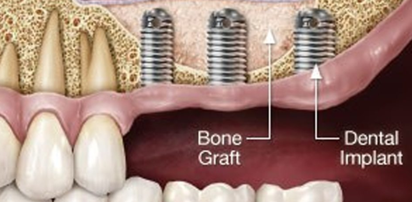 Dental Bone Grafting