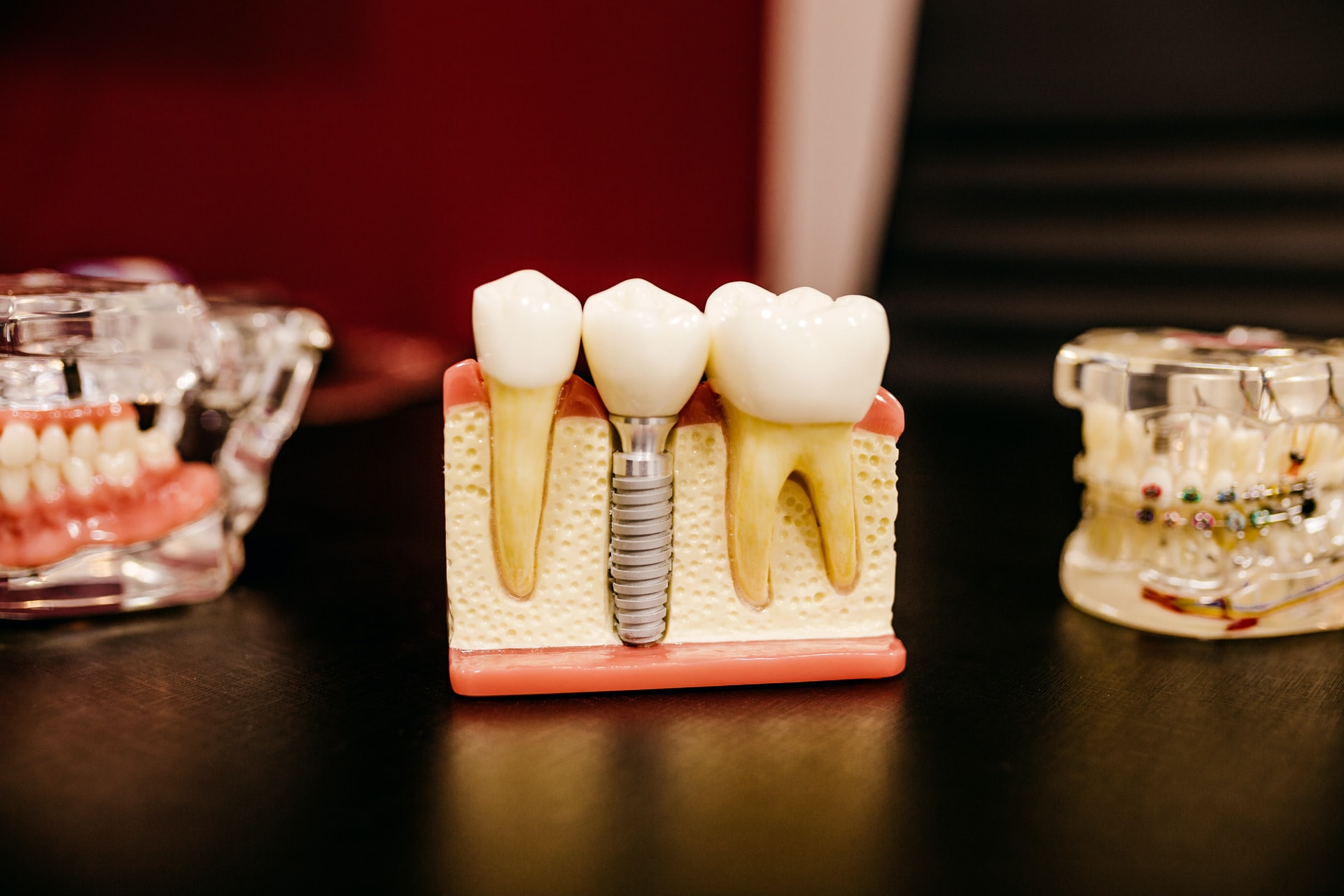 What Are Dental Implants For Dentures?
