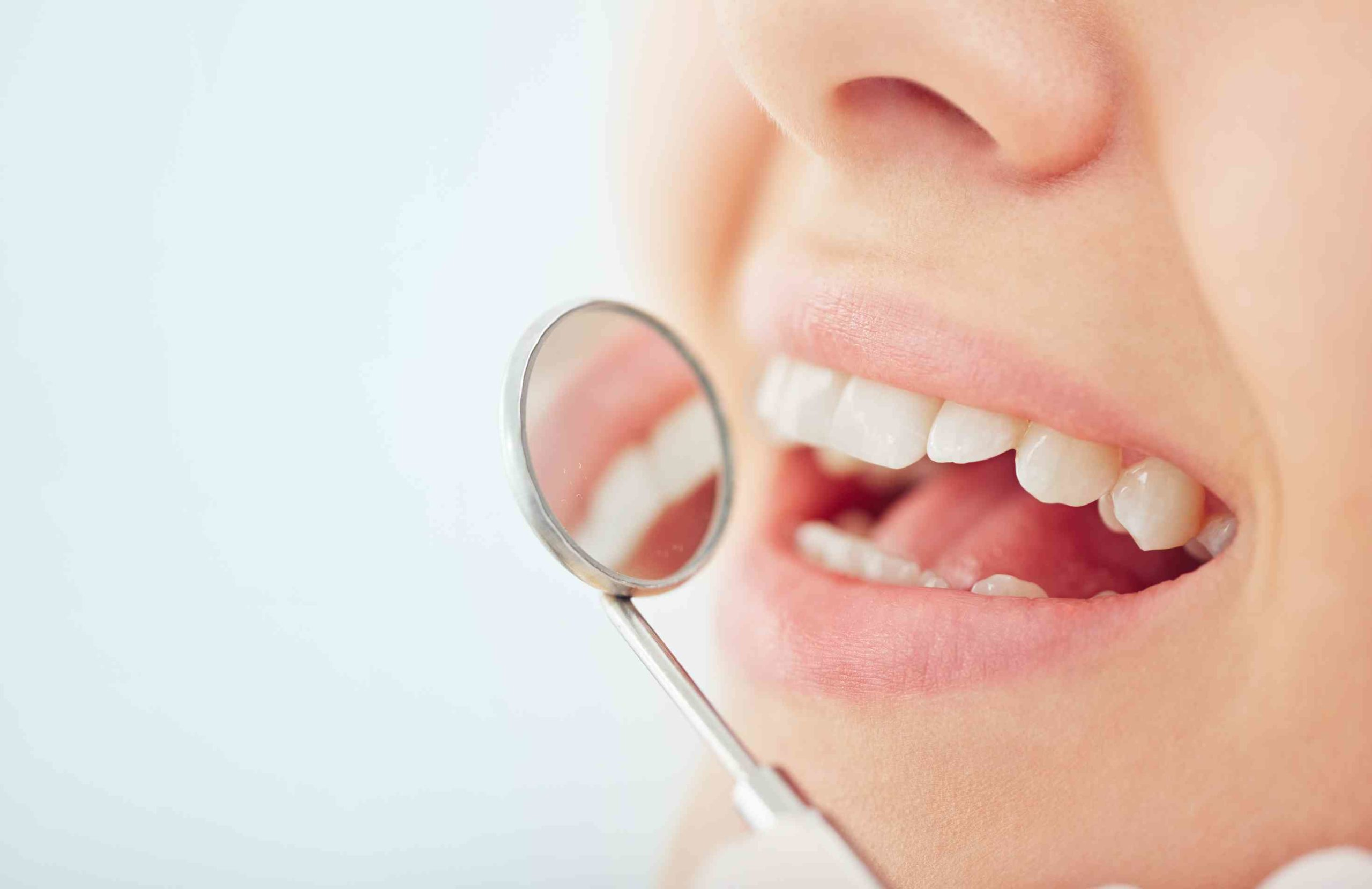 Read more about the article Dental Care: Why Is Dental Health So Important?