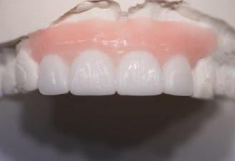 dental services - Dental Bridges